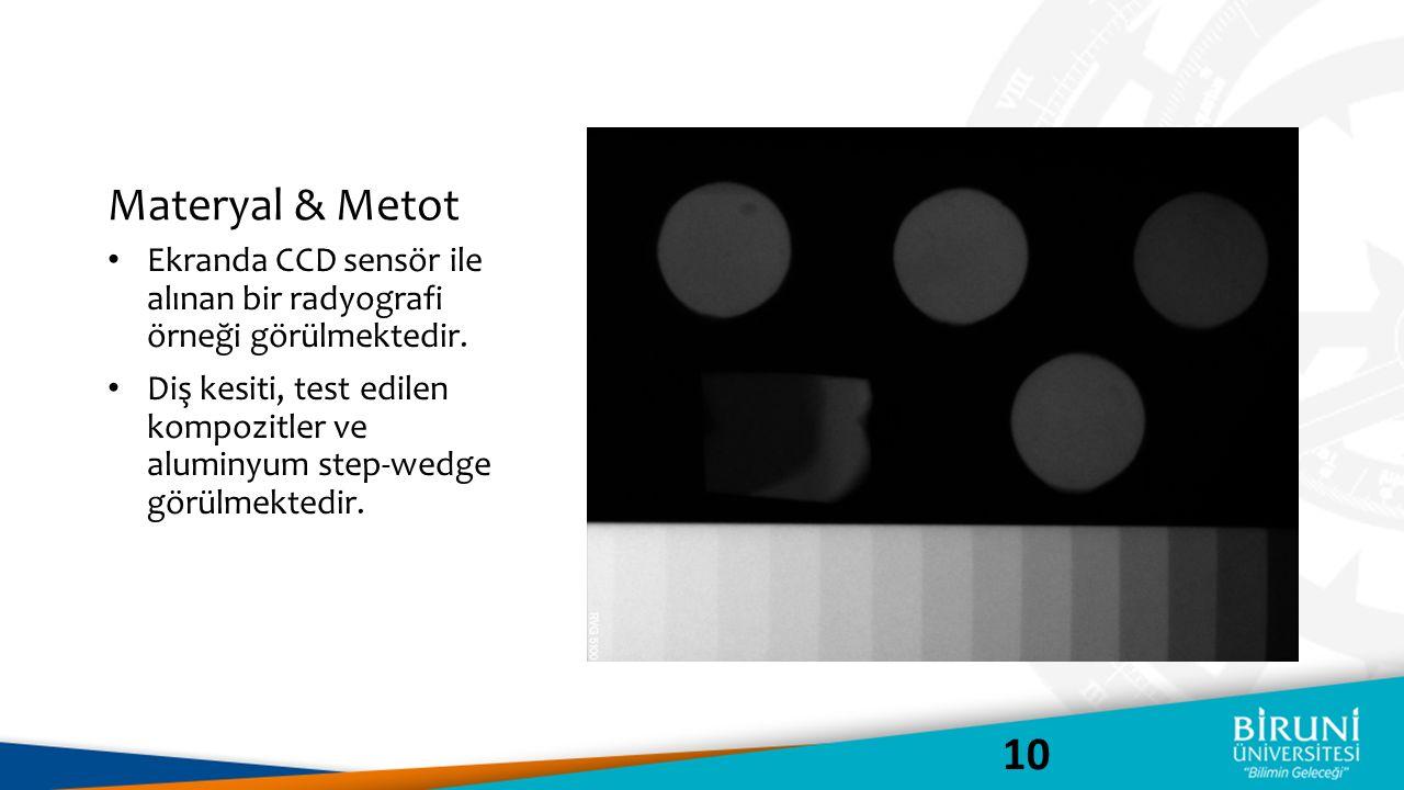 Materyal & Metot Ekranda CCD sensör ile alınan bir radyografi örneği görülmektedir.