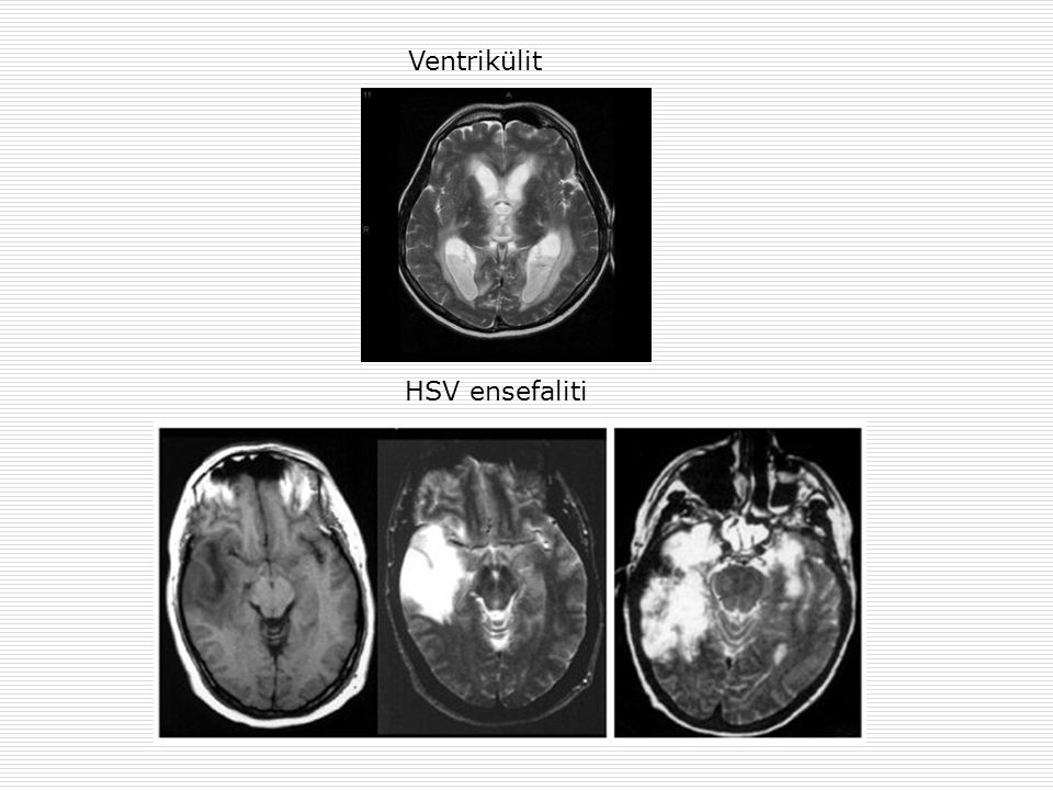 Ventrikülit HSV ensefaliti