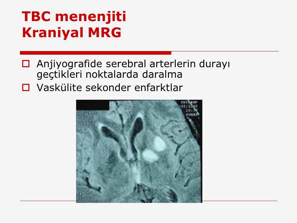 TBC menenjiti Kraniyal MRG