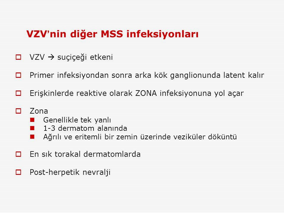 VZV'nin diğer MSS infeksiyonları