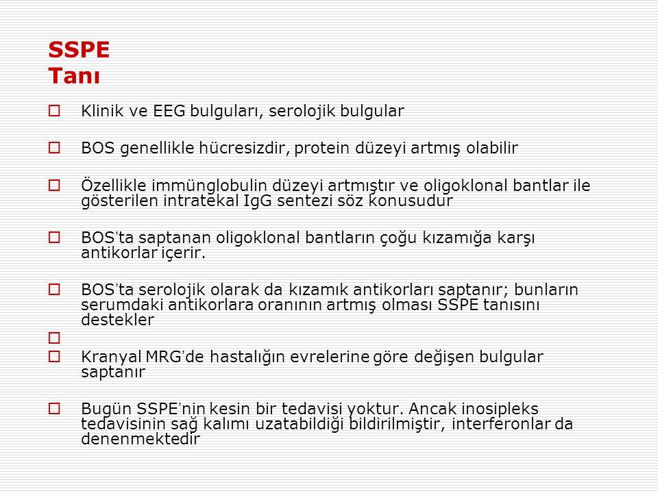 SSPE Tanı Klinik ve EEG bulguları, serolojik bulgular
