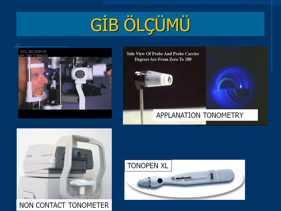GİB ÖLÇÜMÜ TonoPen XL Applanation Tonometer