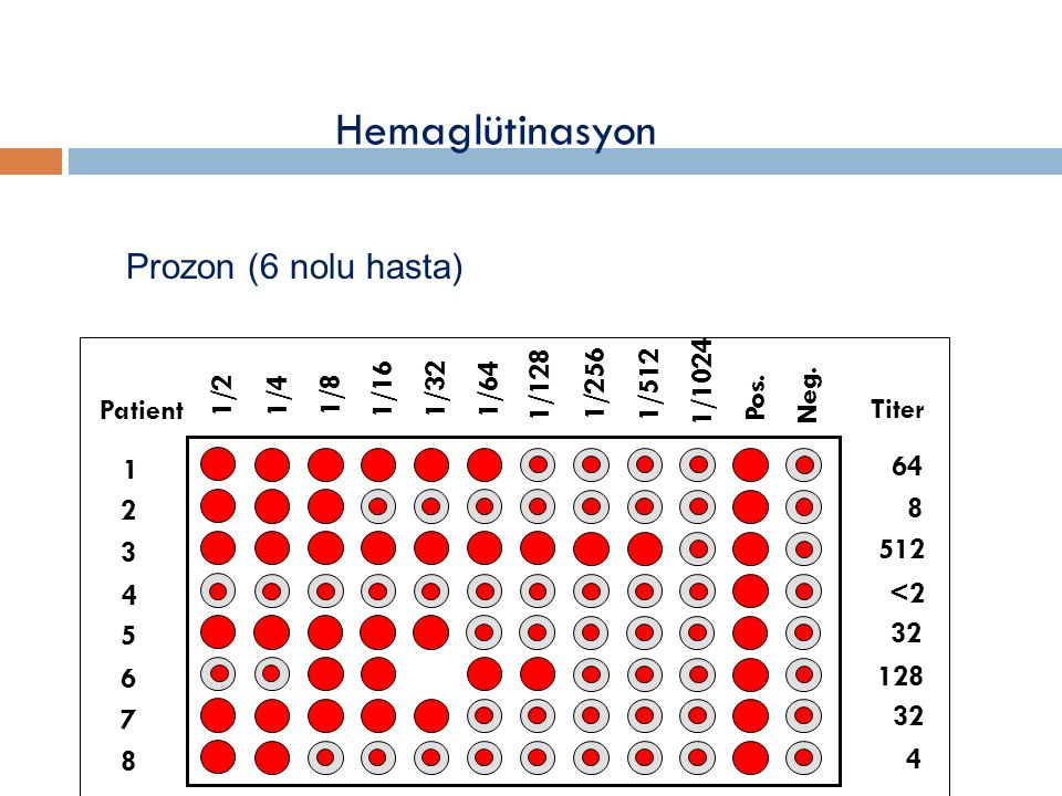 Hemaglütinasyon Prozon (6 nolu hasta) 1/2 1/4 1/8 1/16 1/32 1/64 1/128