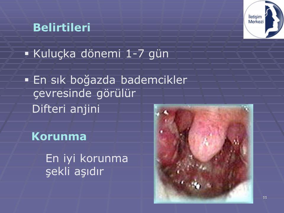 Belirtileri Kuluçka dönemi 1-7 gün. En sık boğazda bademcikler çevresinde görülür. Difteri anjini.