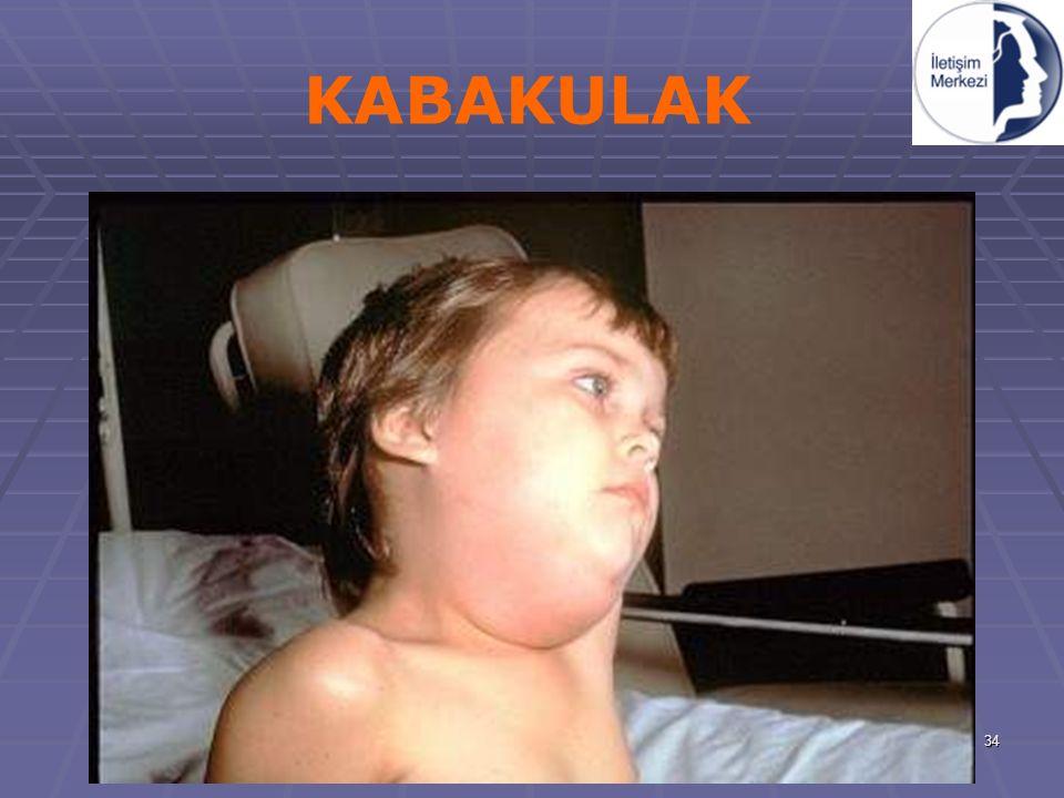 KABAKULAK