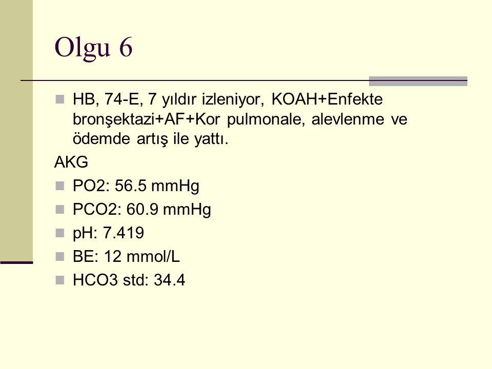 Olgu 6 HB, 74-E, 7 yıldır izleniyor, KOAH+Enfekte bronşektazi+AF+Kor pulmonale, alevlenme ve ödemde artış ile yattı.