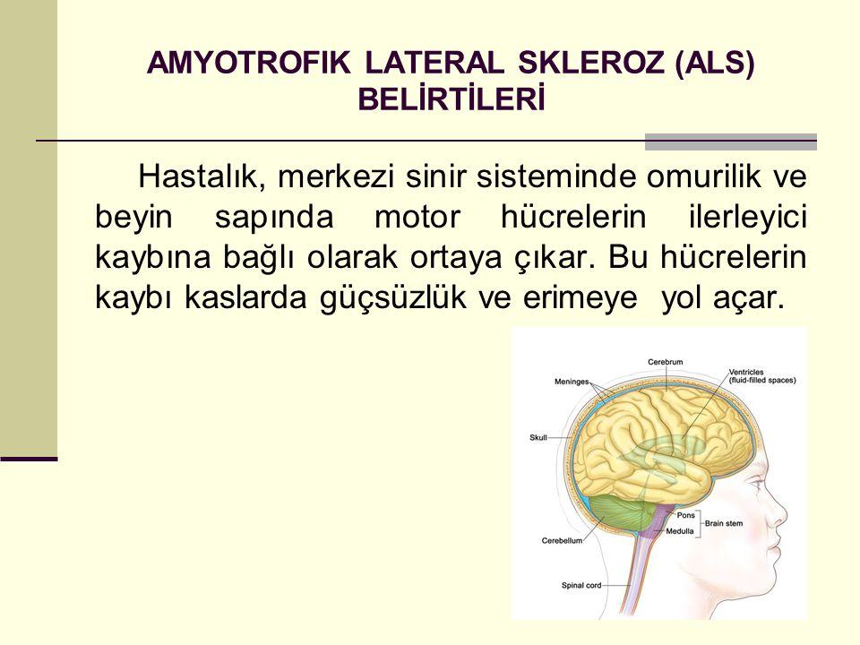 AMYOTROFIK LATERAL SKLEROZ (ALS) BELİRTİLERİ