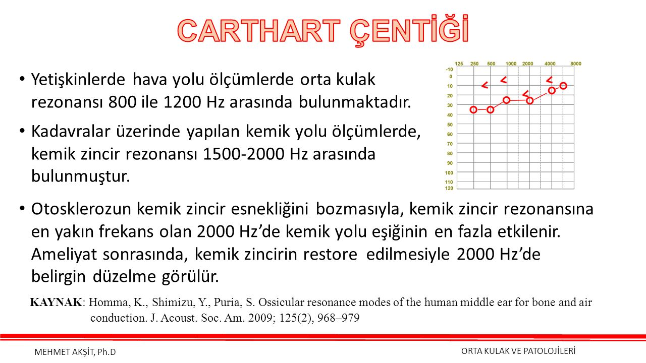 CARTHART ÇENTİĞİ Yetişkinlerde hava yolu ölçümlerde orta kulak rezonansı 800 ile 1200 Hz arasında bulunmaktadır.