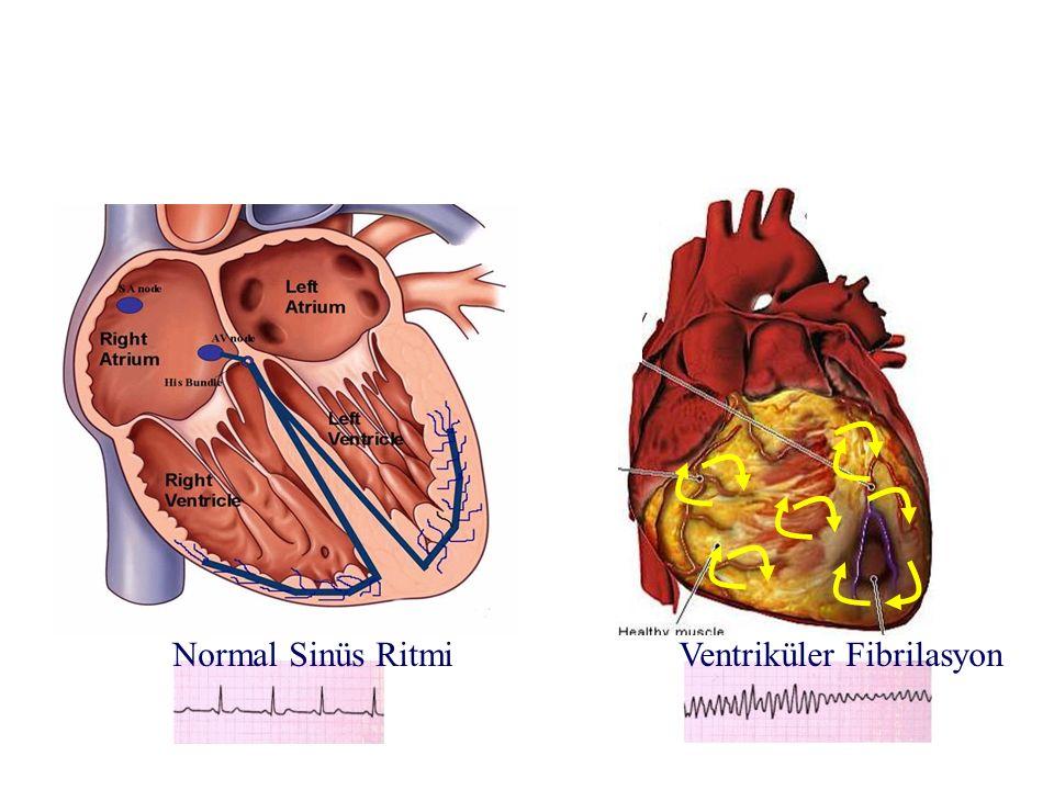 Normal Sinüs Ritmi Ventriküler Fibrilasyon