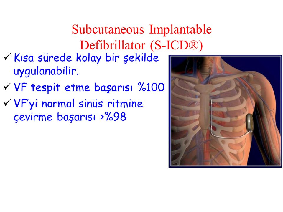 Subcutaneous Implantable Defibrillator (S-ICD®)