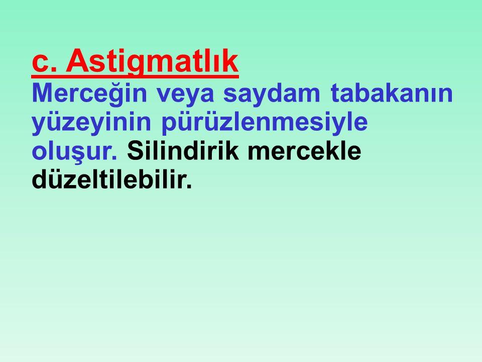 c. Astigmatlık Merceğin veya saydam tabakanın yüzeyinin pürüzlenmesiyle oluşur.
