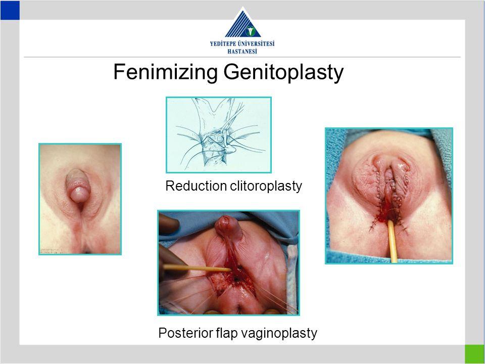 Fenimizing Genitoplasty