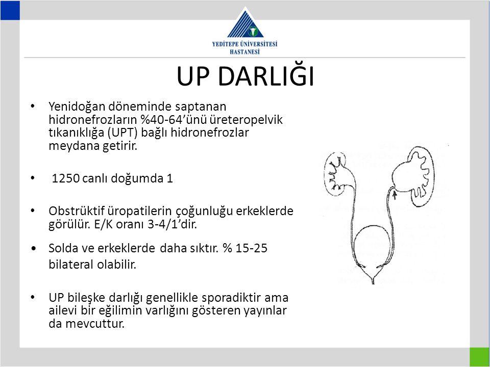 UP DARLIĞI Yenidoğan döneminde saptanan hidronefrozların %40-64'ünü üreteropelvik tıkanıklığa (UPT) bağlı hidronefrozlar meydana getirir.