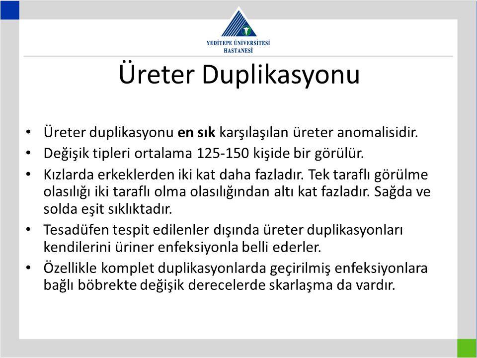Üreter Duplikasyonu Üreter duplikasyonu en sık karşılaşılan üreter anomalisidir. Değişik tipleri ortalama 125-150 kişide bir görülür.