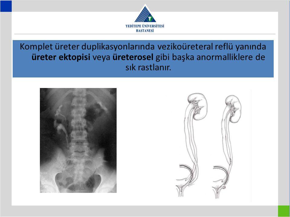 Komplet üreter duplikasyonlarında vezikoüreteral reflü yanında üreter ektopisi veya üreterosel gibi başka anormalliklere de sık rastlanır.