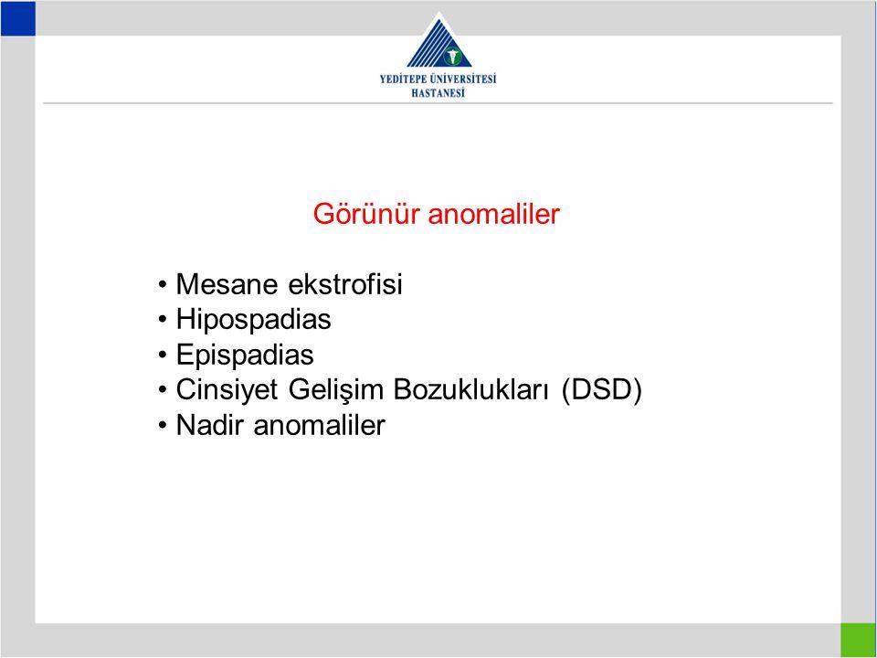 Görünür anomaliler • Mesane ekstrofisi. • Hipospadias. • Epispadias. • Cinsiyet Gelişim Bozuklukları (DSD)