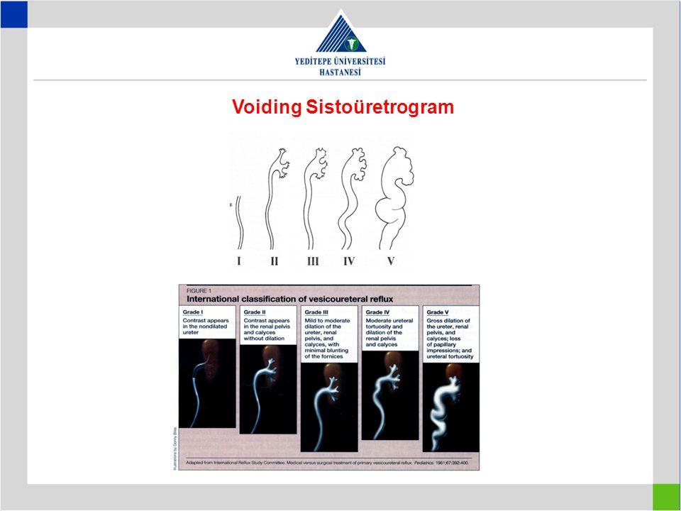 Voiding Sistoüretrogram