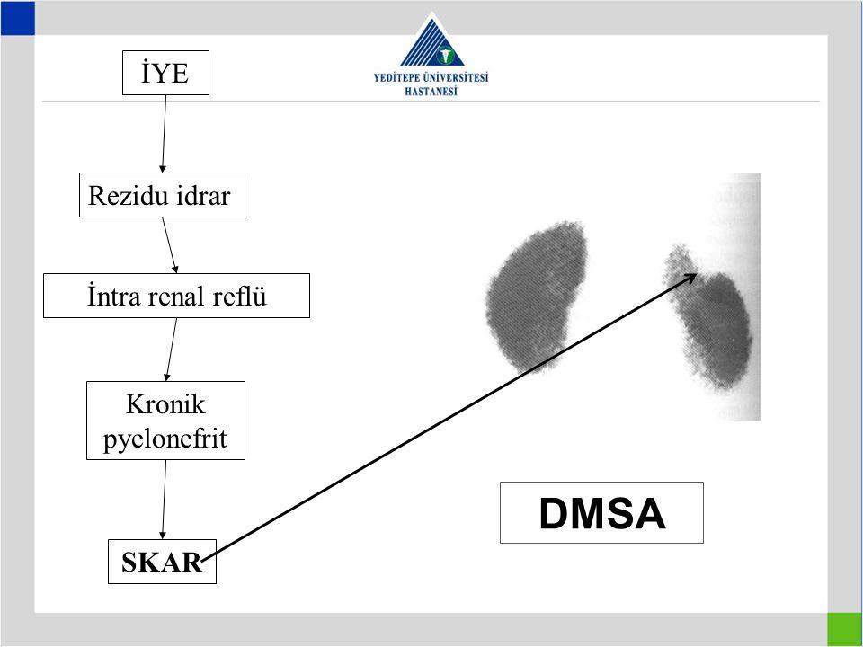 İYE Rezidu idrar İntra renal reflü Kronik pyelonefrit DMSA SKAR