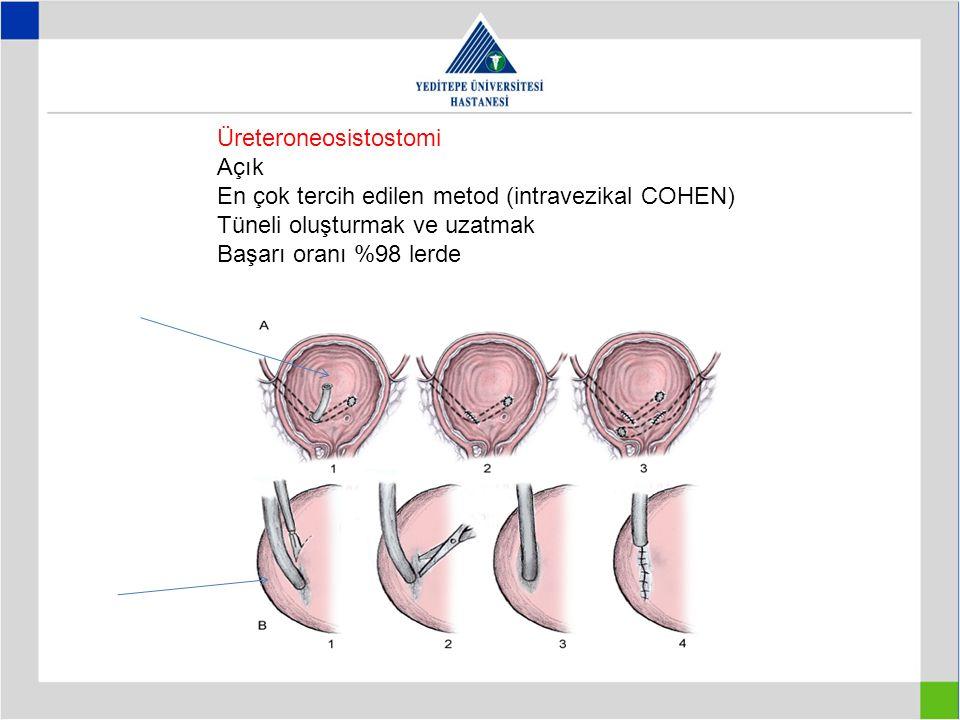 Üreteroneosistostomi