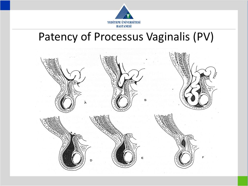 Patency of Processus Vaginalis (PV)
