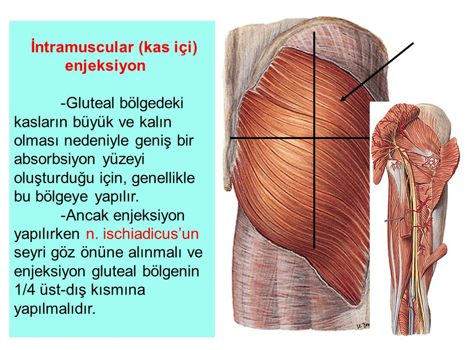 İntramuscular (kas içi)