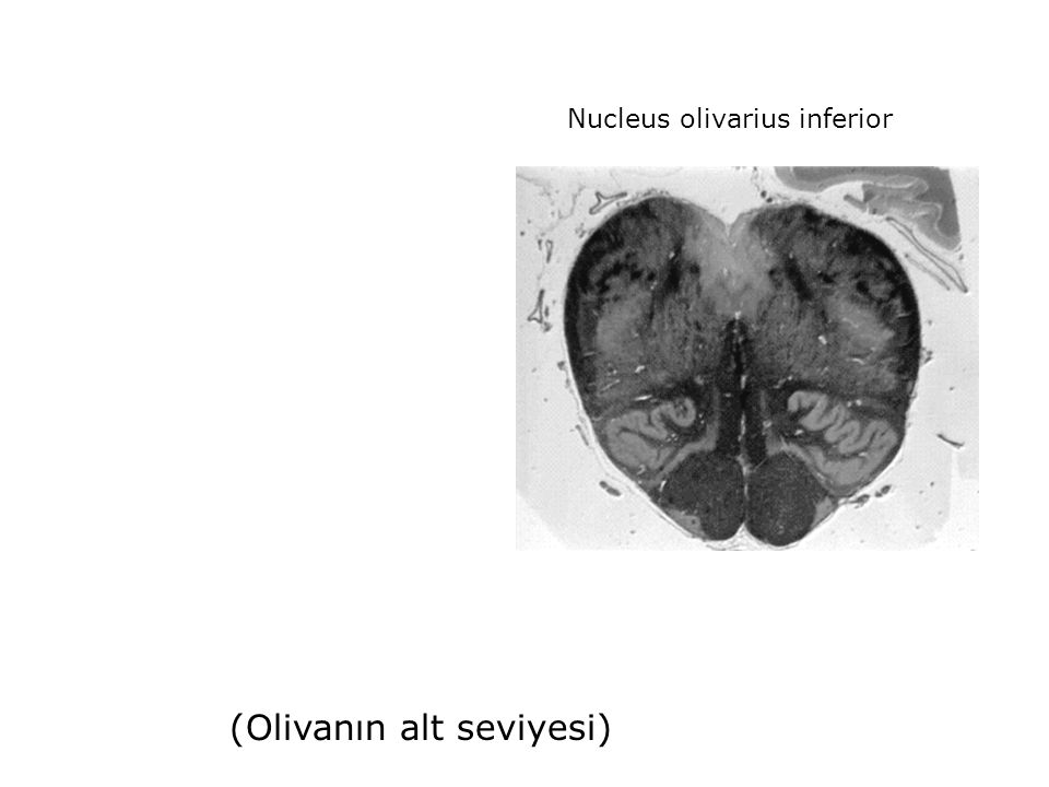 Nucleus olivarius inferior