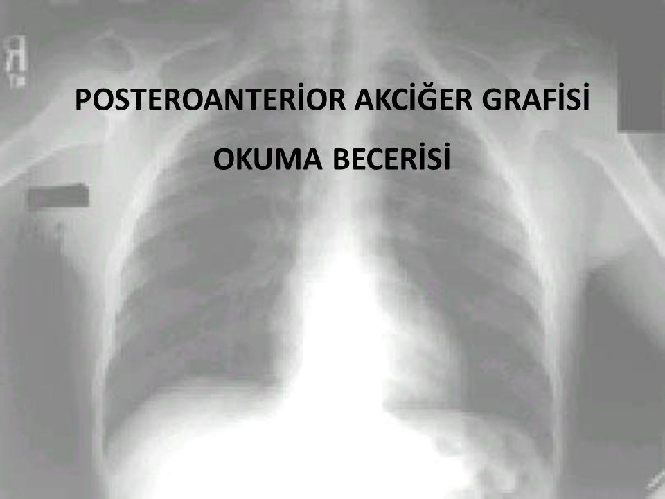 POSTEROANTERİOR AKCİĞER GRAFİSİ OKUMA BECERİSİ