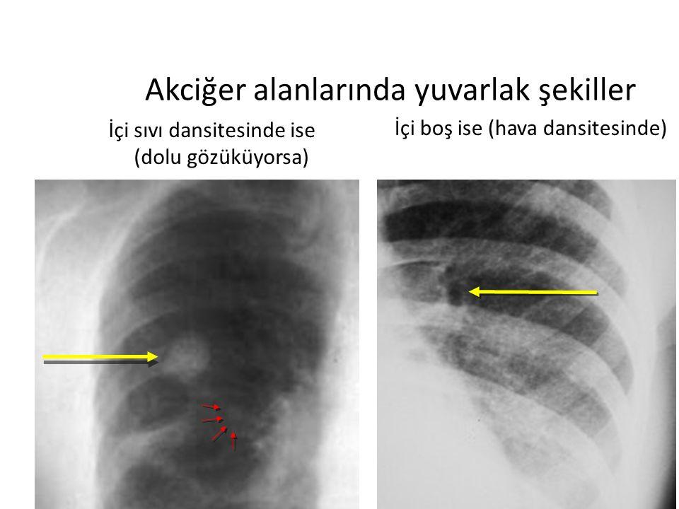 Akciğer alanlarında yuvarlak şekiller