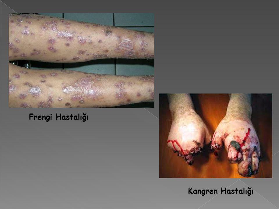 Frengi Hastalığı Kangren Hastalığı