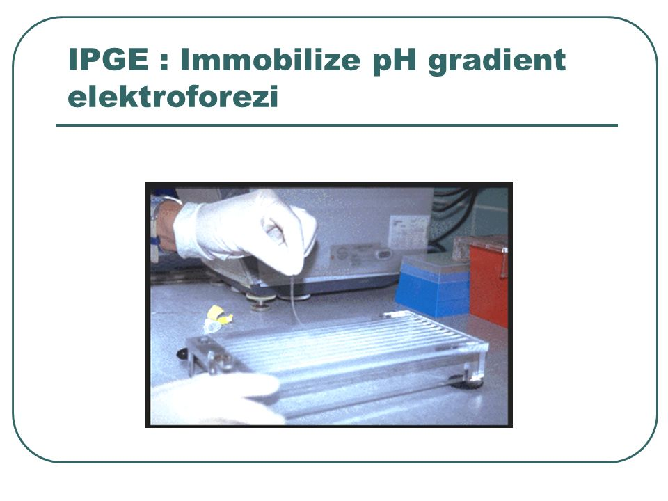 IPGE : Immobilize pH gradient elektroforezi