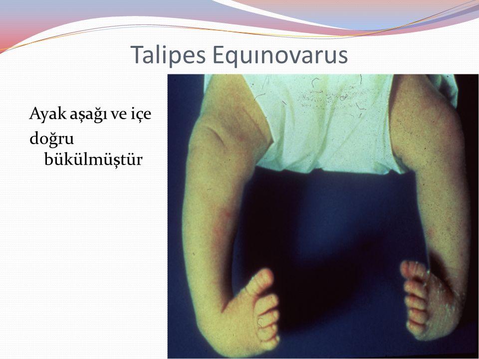 Talipes Equınovarus Ayak aşağı ve içe doğru bükülmüştür
