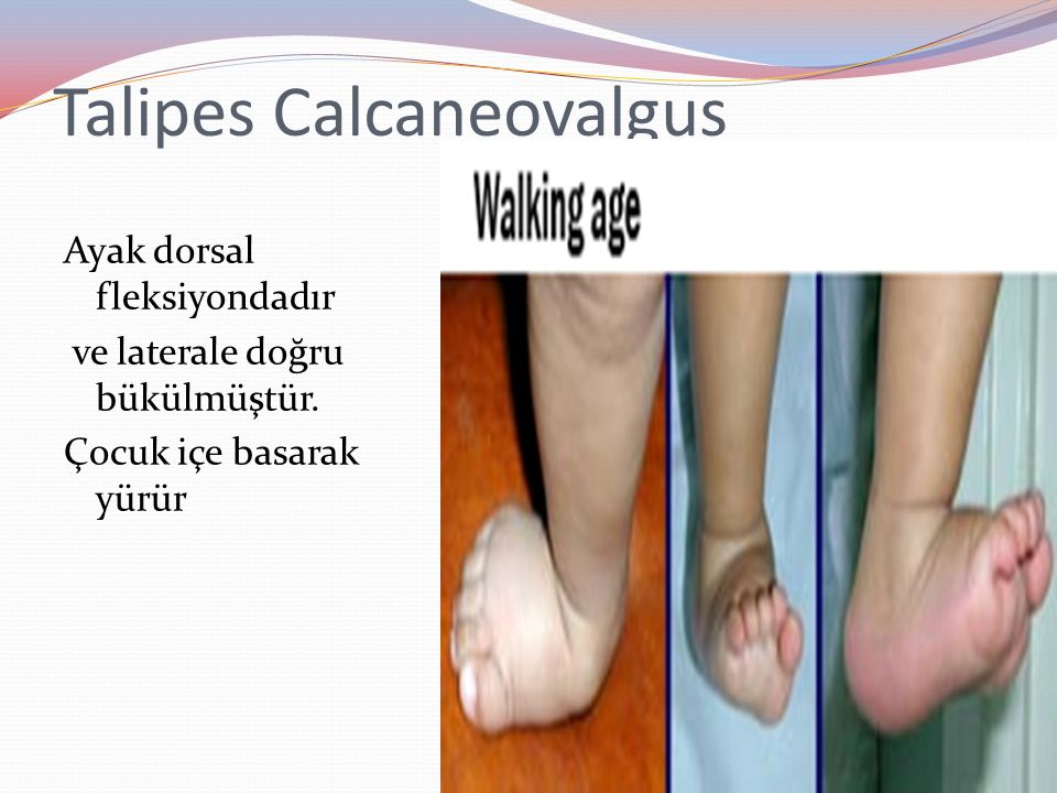 Talipes Calcaneovalgus