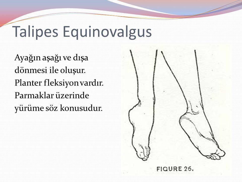 Talipes Equinovalgus Ayağın aşağı ve dışa dönmesi ile oluşur.