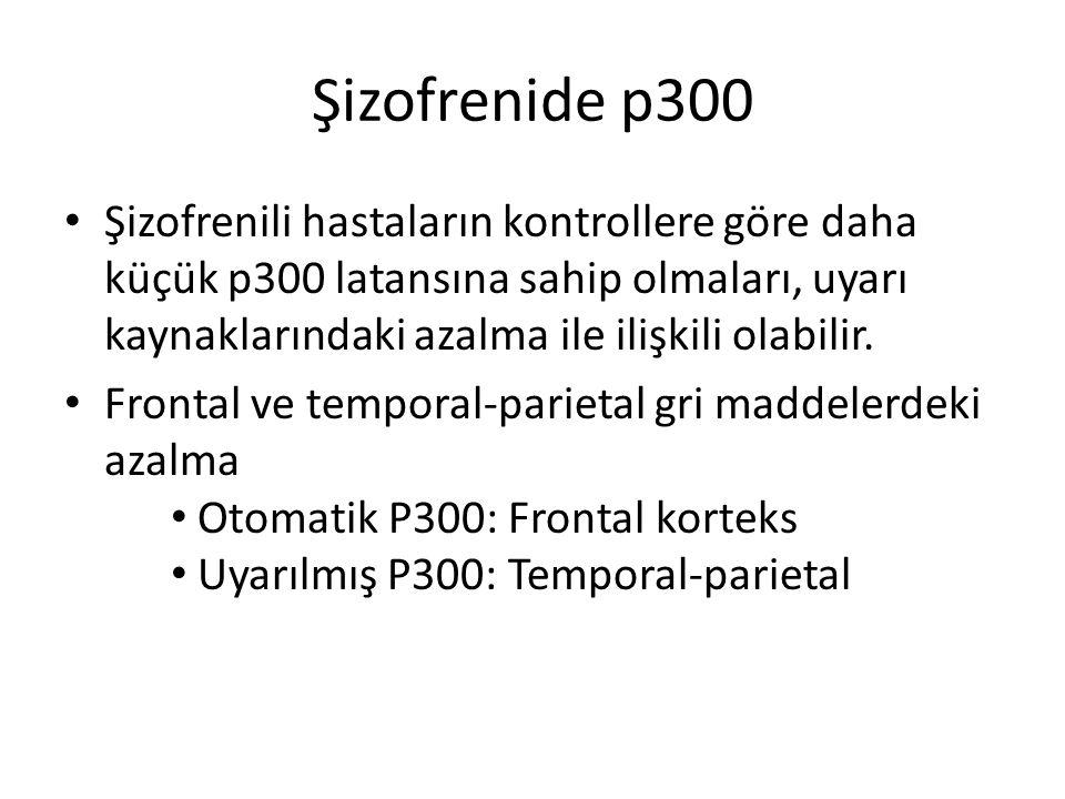 Şizofrenide p300