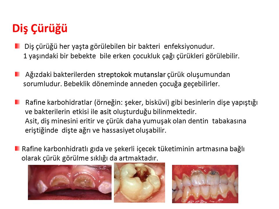 Diş Çürüğü Diş çürüğü her yaşta görülebilen bir bakteri enfeksiyonudur. 1 yaşındaki bir bebekte bile erken çocukluk çağı çürükleri görülebilir.