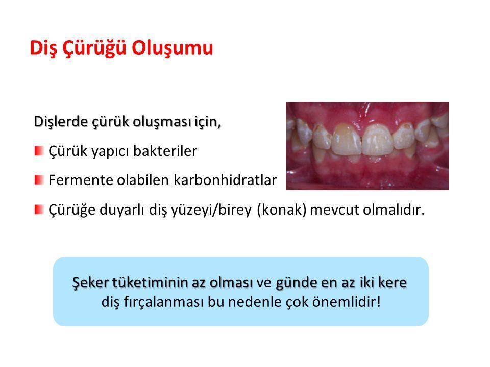 Diş Çürüğü Oluşumu Dişlerde çürük oluşması için,