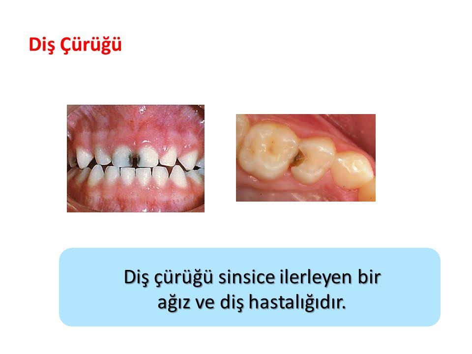 Diş çürüğü sinsice ilerleyen bir ağız ve diş hastalığıdır.