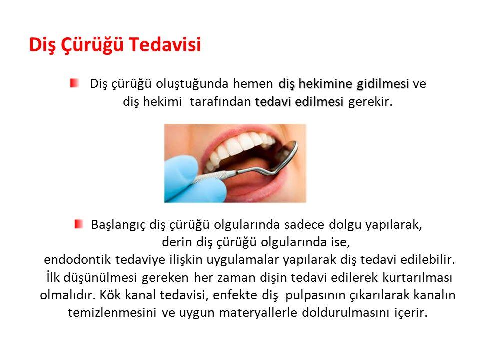 Diş Çürüğü Tedavisi Diş çürüğü oluştuğunda hemen diş hekimine gidilmesi ve. diş hekimi tarafından tedavi edilmesi gerekir.