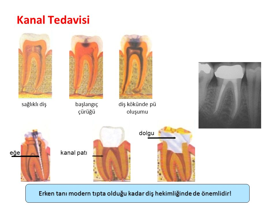 Kanal Tedavisi sağlıklı diş. başlangıç. çürüğü. diş kökünde pü oluşumu. dolgu. eğe. kanal patı.