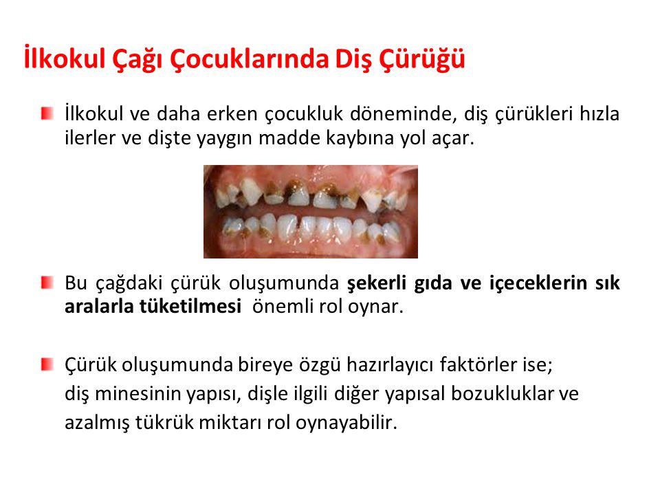 İlkokul Çağı Çocuklarında Diş Çürüğü