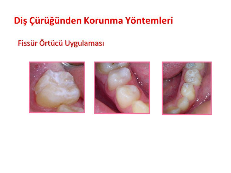 Diş Çürüğünden Korunma Yöntemleri