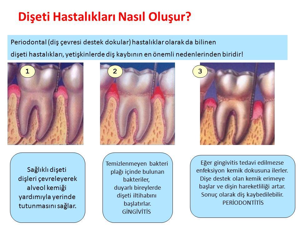 Dişeti Hastalıkları Nasıl Oluşur