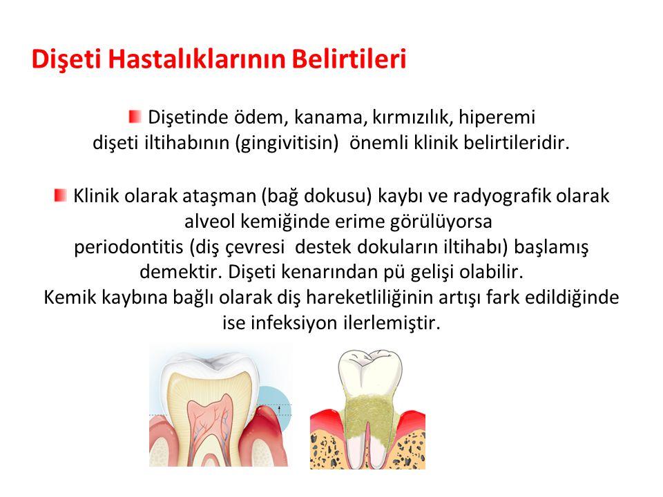 Dişeti Hastalıklarının Belirtileri