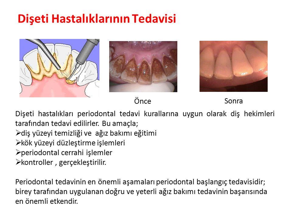 Dişeti Hastalıklarının Tedavisi