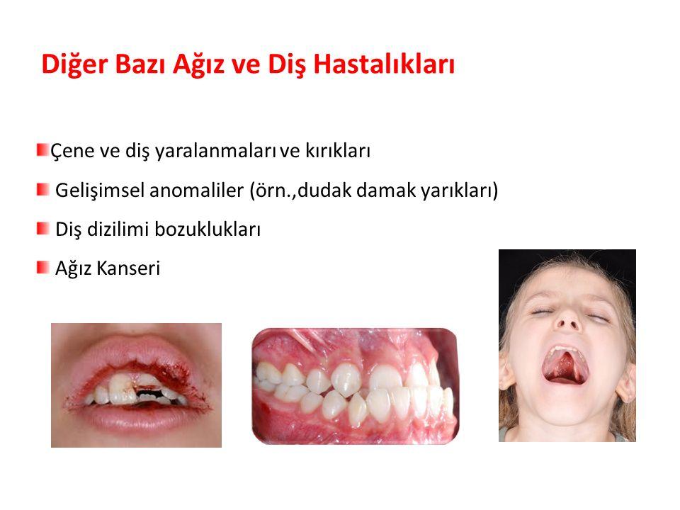 Diğer Bazı Ağız ve Diş Hastalıkları