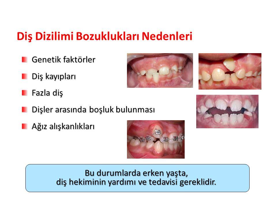 Diş Dizilimi Bozuklukları Nedenleri