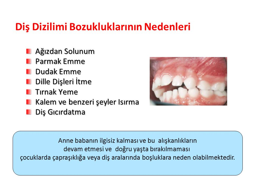 Diş Dizilimi Bozukluklarının Nedenleri