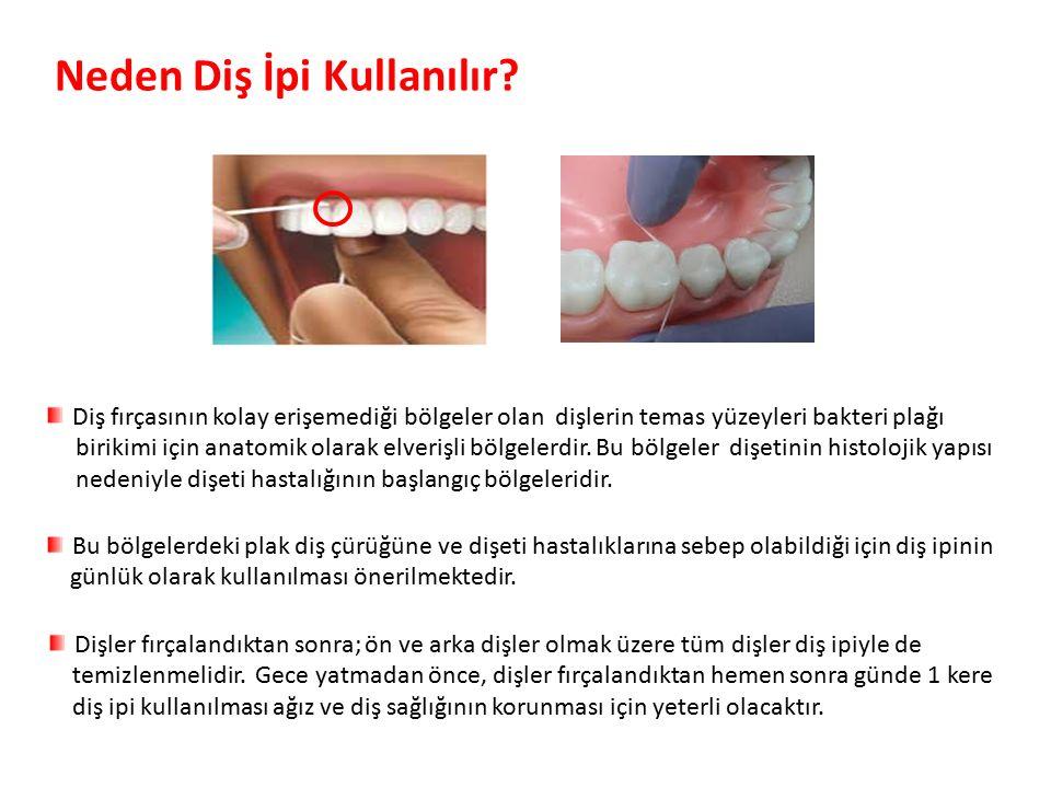 Neden Diş İpi Kullanılır