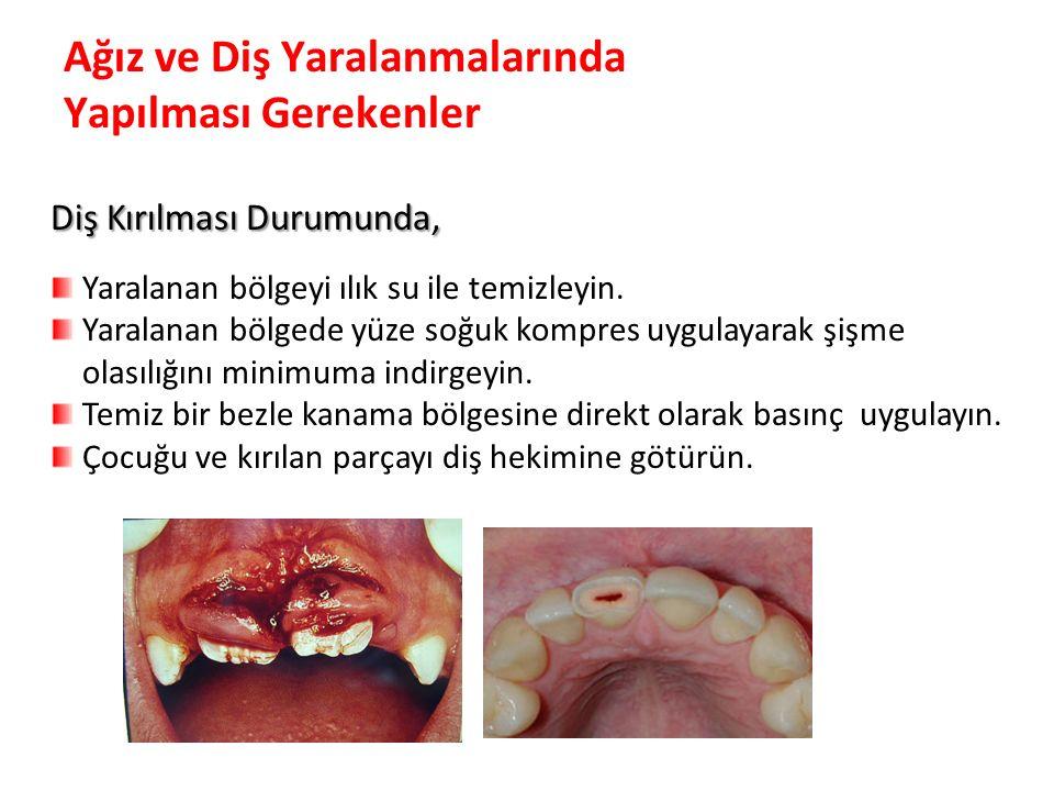 Ağız ve Diş Yaralanmalarında Yapılması Gerekenler
