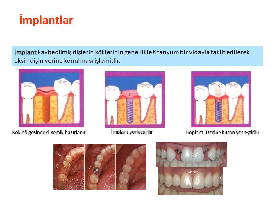 İmplantlar İmplant kaybedilmiş dişlerin köklerinin genellikle titanyum bir vidayla taklit edilerek eksik dişin yerine konulması işlemidir.